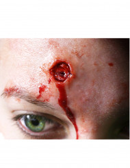 Frida efeito queimadura na pele