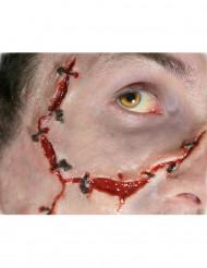 Feridas pontos de sutura