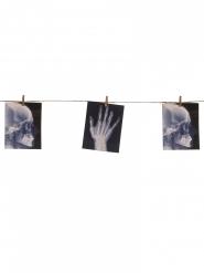 Grinalda com radiografias 160 x 16 cm